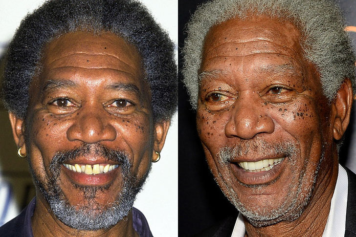 Famous celebrities before and after photoshop celebrity