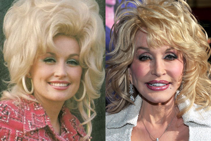10 Shocking Pics of Celebrities Before And After Plastic ...