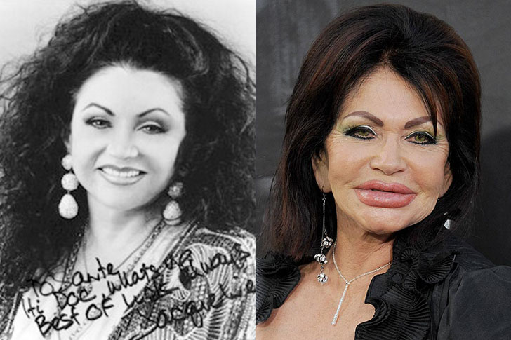 Celebrity Surgery Disasters - Photos and Description ...