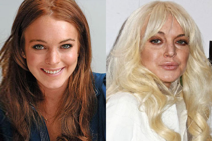 The 20 most shocking celebrity plastic surgery disasters ...